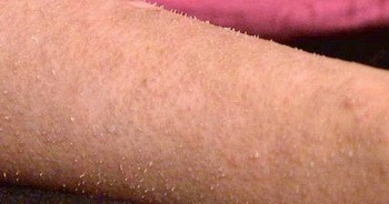 全身が爪になった皮膚、産毛